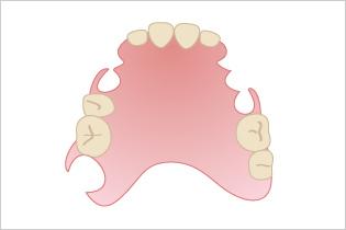 入れ歯の種類のイメージ03